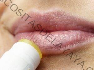 Que es el  ácido hialurónico y sus tratamientos